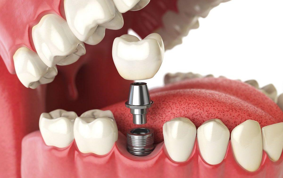 Зачем необходимо протезирование зубов?