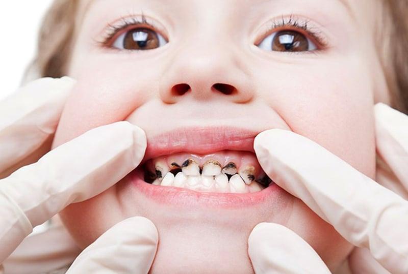 Кариес молочных зубов. Нужно ли лечить?
