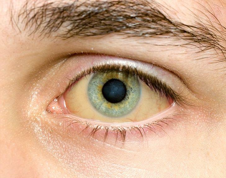 Белок глаз стал желтым: что это — гепатит?